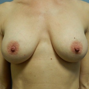 After Photo - Breast Augmentation - Case #18394 - Frontal View