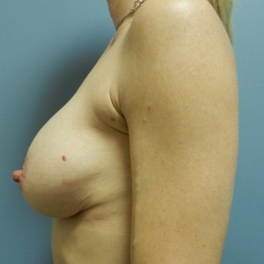 After Photo - Breast Augmentation - Case #18394 - Lateral View