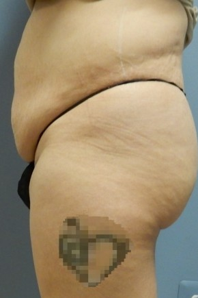Before Photo - Tummy Tuck - Case #18429 - Abdominoplasty - Lateral View