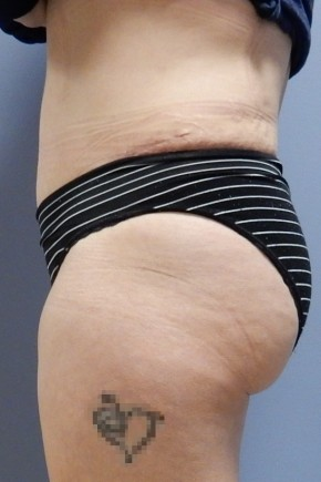 After Photo - Tummy Tuck - Case #18429 - Abdominoplasty - Lateral View