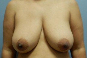 Before Photo - Breast Lift - Case #18433 - Mastopexy - Frontal View
