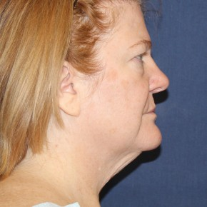 Before Photo - Facial Rejuvenation - Case #18434 - Facelift, Upper Eyelid lift and Bellafill the Permanent Filler for the Lower Eyelids, Lips, Laugh Lines and Marionette Lines - Lateral View