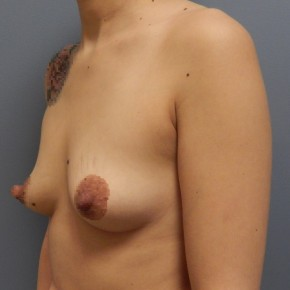 Before Photo - Breast Augmentation - Case #18431 - Oblique View