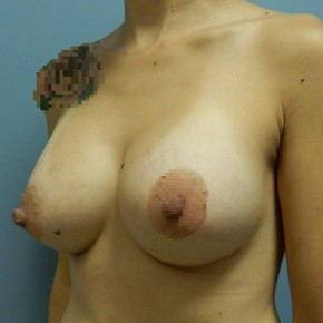 After Photo - Breast Augmentation - Case #18431 - Oblique View