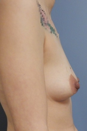 Before Photo - Breast Augmentation - Case #18431 - Lateral View