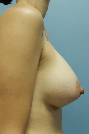 After Photo - Breast Augmentation - Case #18431 - Lateral View