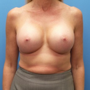 After Photo - Breast Augmentation - Case #18474 - 53 year old - Breast Augmentation/Bilateral Nipple Inversion Correction - 3 months post-op - Frontal View