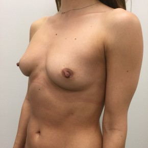 Before Photo - Breast Augmentation - Case #18476 - Oblique View