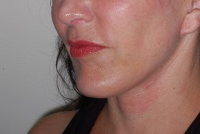 After Photo - Facial Implants - Case #18478 - Chin Implant - Oblique View