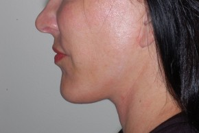 After Photo - Facial Implants - Case #18478 - Chin Implant - Lateral View