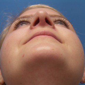 After Photo - Nose Surgery - Case #18495 - 18 year old - Rhinoplasty/Septoplasty/Turbinectomy  -  5 months post-op - Worm's Eye View