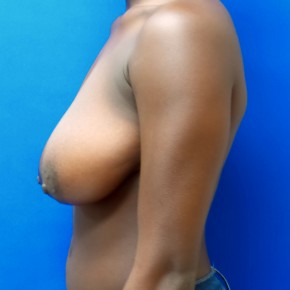 Before Photo - Breast Reduction - Case #18621 - Wise Pattern Breast Reduction - Lateral View