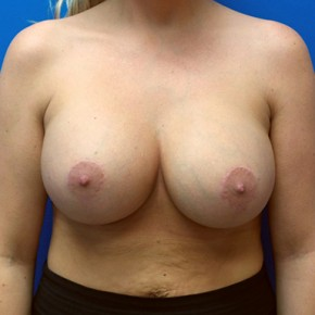 After Photo - Breast Augmentation - Case #18622 - Saline Breast Augmentation/Mastopexy - Frontal View