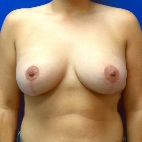 After Photo - Breast Augmentation - Case #18623 - Breast Augmentation/Mastopexy - Frontal View