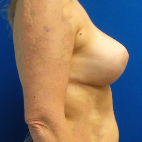 After Photo - Breast Augmentation - Case #18624 - Breast Augmentation/Mastopexy - Lateral View