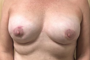 After Photo - Breast Reconstruction - Case #18626 - Direct-To-Implant Based Breast Reconstruction  - Frontal View