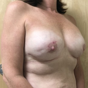 After Photo - Breast Reconstruction - Case #18626 - Direct-To-Implant Based Breast Reconstruction  - Oblique View