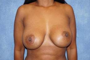 Before Photo - Breast Reduction - Case #18629 - Breast Implant Removal - Frontal View