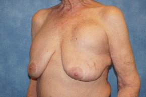 Before Photo - Breast Revision - Case #18630 - Breast Implant Removal - Oblique View