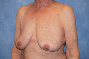 After Photo - Breast Revision - Case #18630 - Breast Implant Removal - Oblique View