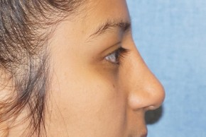 After Photo - Nose Surgery - Case #18631 - Rhinoplasty - Lateral View