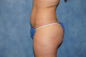 Before Photo - Liposuction - Case #18632 - Lateral View