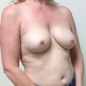 Before Photo - Breast Reconstruction - Case #18633 - Nipple sparing mastectomies with immediate breast reconstruction with tissue expander to implant  - Oblique View