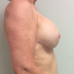 After Photo - Breast Reconstruction - Case #18633 - Nipple sparing mastectomies with immediate breast reconstruction with tissue expander to implant  - Lateral View