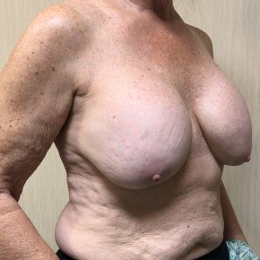 Before Photo - Breast Augmentation - Case #18634 - Breast Augmentation Revision - Oblique View