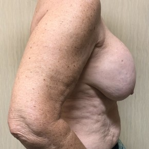 Before Photo - Breast Augmentation - Case #18634 - Breast Augmentation Revision - Lateral View
