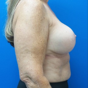 After Photo - Breast Augmentation - Case #18634 - Breast Augmentation Revision - Lateral View