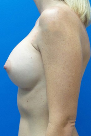 After Photo - Breast Augmentation - Case #18647 - Silicone Breast Augmentation - Lateral View