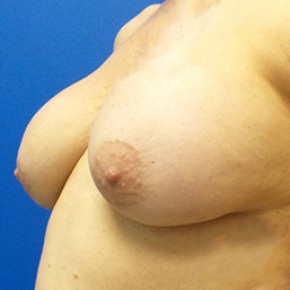 Before Photo - Breast Revision - Case #18646 - Breast Augmentation Revision with Mastopexy - Oblique View