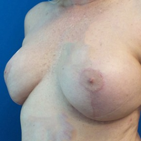 After Photo - Breast Revision - Case #18646 - Breast Augmentation Revision with Mastopexy - Oblique View