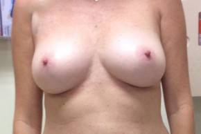 Before Photo - Breast Reconstruction - Case #18645 - Implant Based Breast Reconstruction - Frontal View