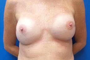 After Photo - Breast Reconstruction - Case #18645 - Implant Based Breast Reconstruction - Frontal View
