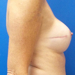 After Photo - Breast Reconstruction - Case #18645 - Implant Based Breast Reconstruction - Lateral View