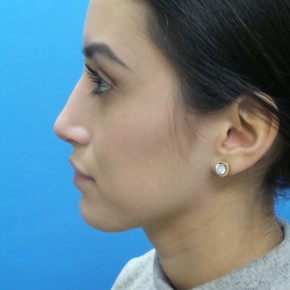 After Photo - Nose Surgery - Case #18650 - 23-year old - Open Rhinoplasty - 3 months post-op - Lateral View
