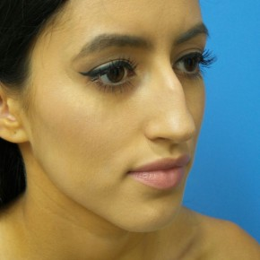 Before Photo - Nose Surgery - Case #18650 - 23-year old - Open Rhinoplasty - 3 months post-op - Oblique View