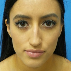 Before Photo - Nose Surgery - Case #18650 - 23-year old - Open Rhinoplasty - 3 months post-op - Frontal View