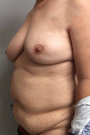 Before Photo - Breast Reconstruction - Case #18703 - Bilateral Nipple Sparing DIEP Flap Breast Reconstruction - Oblique View