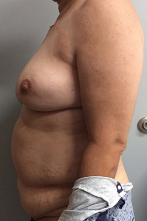 Before Photo - Breast Reconstruction - Case #18703 - Bilateral Nipple Sparing DIEP Flap Breast Reconstruction - Lateral View