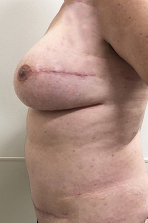 After Photo - Breast Reconstruction - Case #18703 - Bilateral Nipple Sparing DIEP Flap Breast Reconstruction - Lateral View