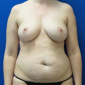 Before Photo - Breast Reconstruction - Case #18704 - Bilateral Nipple Sparing DIEP Flap Breast Reconstruction - Frontal View
