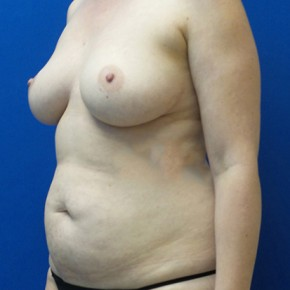 Before Photo - Breast Reconstruction - Case #18704 - Bilateral Nipple Sparing DIEP Flap Breast Reconstruction - Oblique View