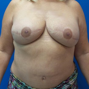 After Photo - Breast Revision - Case #18707 - Breast Reconstruction Revision - Frontal View