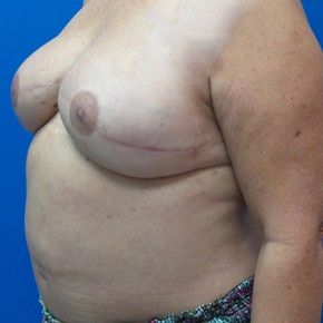 After Photo - Breast Revision - Case #18707 - Breast Reconstruction Revision - Oblique View