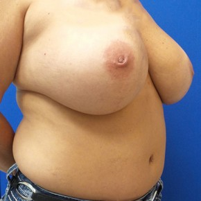 Before Photo - Breast Reconstruction - Case #18708 - Right Tissue Expander to Implant Based Breast Reconstruction - Oblique View