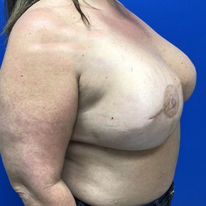 After Photo - Breast Reconstruction - Case #18708 - Right Tissue Expander to Implant Based Breast Reconstruction - Oblique View