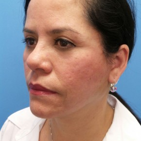 After Photo - Facelift - Case #18725 - 54-year old - Upper & Lower Blepharoplasty/Facelift/Fat Grafting  to  Upper Cheeks & Lower Lids/Skin Resurfacing to both cheeks   3 months post-op - Oblique View